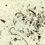 nematodes via a microscope